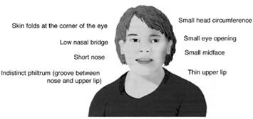 Craniofacial features associated with fetal alcohol syndrome